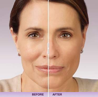 Baton Rouge Juvederm Specialists - he Oaks at Goodwood Med Spa