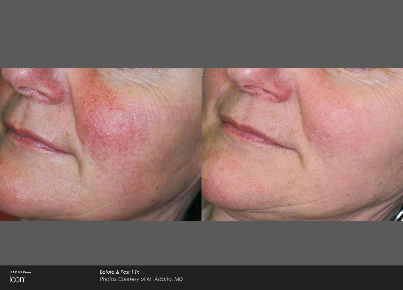 Rosacea Treatment Before & After