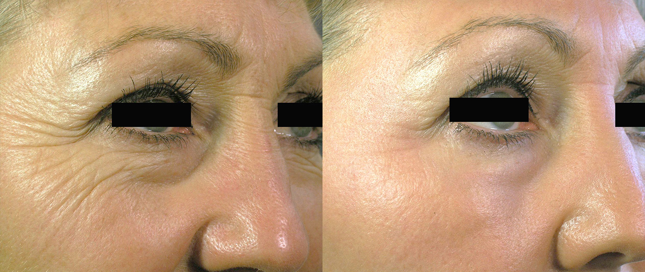 Non Ablative Skin Resurfacing Before & After